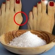 "Monturile ""se dizolvă"" în 2 zile, doar am legat pe picior o… Natural Health Remedies, Herbal Remedies, Bunion Remedies, Health Insurance Companies, Healthy Eating Tips, Feet Care, Natural Medicine, Health And Wellbeing, Health Tips"