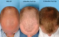 Profile hair transplant provides you to proper hair transplant treatment at very low prices. There are many types of treatment persons can choose any type of treatment at very low cost now a day's FUE techniques is very preferable. Many people's go with F