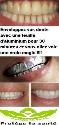 Enveloppez vos dents avec une feuille d'aluminium pour 30 minutes et vous allez voir une vraie magie !!!!