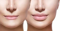 Its about Lip Reduction Vs Lip Filler ,Botox versus lip fillers as well as natural methods to get fuller lips at home also about silicone lip implants . Make Lips Bigger, How To Get Bigger, Lip Implants, Lip Augmentation, Dermal Fillers, Lip Fillers, Lip Tips, Thin Lips, Lip Shapes