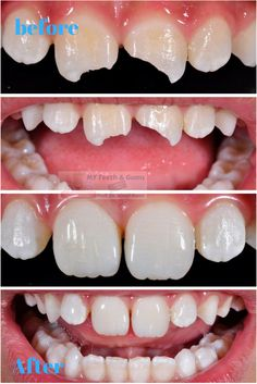 Before and After image of broken tooth repaired with cosmetic dentistry