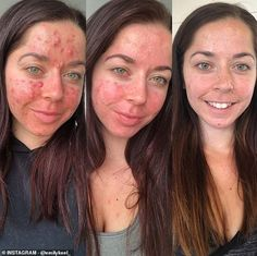 Personal trainer shares her striking before and after acne pictures - Personal trainer who had the 'worst acne ever seen' shares her striking before and after pictur - Tretinoin Before And After, Before And After Acne, Accutane Before And After, The Ordinary Before And After, Before And After Pictures, Covering Acne, Differin Gel, Bad Acne, The Ordinary Skincare
