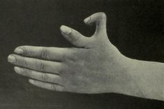 Supernumerary thumb, from Edward M. Foote's A text-book of minor surgery, 1909