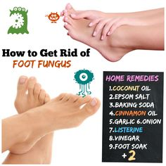 How to Get Rid of Foot Fungus #11 Athlete's Foot to Happy Feet. How to Get Rid of Foot Fungus: Home Remedies 1.Coconut Oil 2.Epsom Salt 3.Baking Soda 4.Cinnamon Oil 5.Garlic 6.Onion 7.Listerine 8.Vinegar 9.Foot Soak 10 Rubbing alcohol 11.Essential oil..
