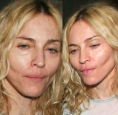 Oh Madonna you showed us how to vogue, now show us how to age with grace! Stop the plastic-surgery! Pleeeezz!