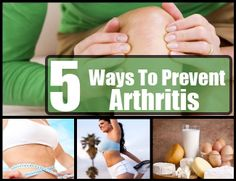 5 Thing To Know About How To Prevent Arthritis