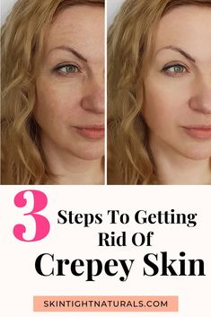 How To Improve Wrinkles - 3 Steps To Getting Rid Of Crepey Skin. Powerful tips to reverse the aging process faster than . Sensitive Skin Care, Oily Skin Care, Acne Prone Skin, Anti Aging Skin Care, Natural Skin Care, Skin Care Tips, Dry Skincare, Best Skincare Products, French Skincare