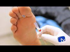 A diabetes pode evoluir para um quadro de neuropatia diabética e atinge as extremidades do corpo. Conheça mais sobre ela. Site de vídeos sobre pé diabético.