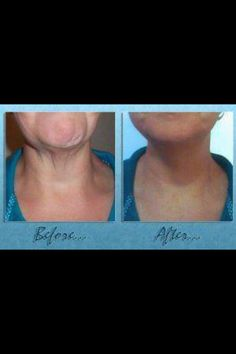 Firm, tighten, and tone from the neck down with the It Works! Ultimate Body Applicator! Find out how amazing these crazy wrap things really are!  Shop at: http://wrapwitherint.myitworks.com/