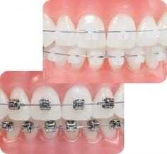 Các loại mắc cài niềng răng phổ biến nhất hiện nay