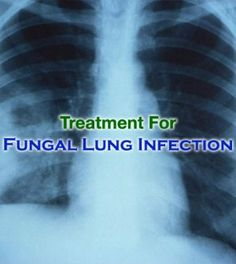 Best Options For #Fungal #Lung #Infection #Treatment -   #FungalLungInfectionTreatment #FungalLungInfection #LungInfection #FungalInfection #LungInfectionTreatment