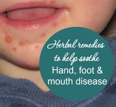 If your child is fighting Hand, Foot, and Mouth Disease, use these common and effective herbs to ease their pain and speed their healing.