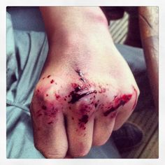 Broken hand, bruising and wounding makeup up!