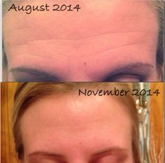 Real people. Real results! I'm searching for before + after candidates, so contact me if you would like results like these at MY consultant discount.   sarahkwheeler.myrandf.com #skincare #results #wrinkles #acne #sensitiveskin #eczema #rosacea #psoriasis #sundamage #health #beauty #discount