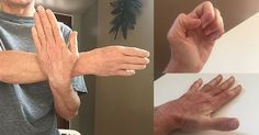 L'artrite è una delle cose più frustranti che le persone sperimentano e può verificarsi in tutte le età, anche se …