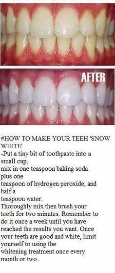 Natural Teeth Whitening Remedies Get shinning white teeth in 5 minutes. Best Teeth Whitening Kit, Teeth Whitening Remedies, Natural Teeth Whitening, Skin Whitening, Homemade Teeth Whitening, Crest Whitening, White Teeth Tips, Teeth Care, Tips Belleza