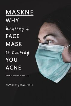 Yikes! COVID is enough to deal with let alone Maskne. What is Maskne and can you get rid of it? There's lots you can do my friend. I'm talking you through 5 science proven steps to help heal and prevent. Click this pin to find them out. #maskne #honestyforyourskin #acne Acne Face Wash, Acne Skin, Acne Prone Skin, Moisturizer For Oily Skin, Oily Skin Care, All Natural Skin Care, Natural Beauty, Acne Makeup, Acne Spot Treatment