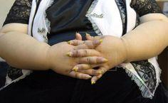 Las mujeres con sobrepeso tienen más riesgo de no detectar el cáncer de mama