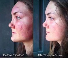 Rodan and Fields Soothe regimen results… Definitely one the best before and after pictures I've ever seen!!