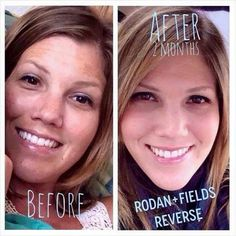 "Check out Shannon's stunning results after just 60 days using Rodan + Fields! It's no wonder we get all the free press. Here's what she had to say: ""What may be more awkward than posting this is that I thought I had pretty good skin several months ago. Ummm…clearly I did not. My skin tone had many spots from sun damage, marks from melasma and let's not even talk about the situation going on with my dark, tired looking Mommy eyes.  https://www.rodanandfields.com/US/pws/jhawley2/"