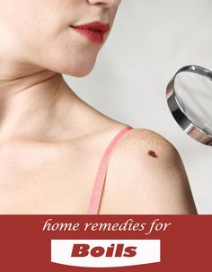 Home Remedies for Boils - TechMedisa