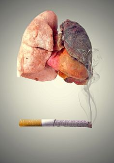 The Difference Between Smoker's Lungs and Normal Healthy Lungs I Quit Smoking, Smoking Causes, Smoking Kills, Giving Up Smoking, Smoking Facts, Minimal Photography, Boy Photography Poses, Satirical Illustrations, Medical Illustrations