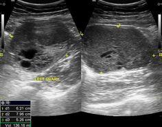 Ovarian Sertoli-Leydig cell tumour   Radiology Case   Radiopaedia.org