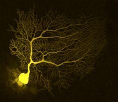 Neurona de Purkinje del cerebelo inyectada con un colorante fluorescente y fotografiada usando microscopio confocal.