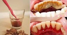 Wystarczy je ze sobą wymieszać i nanieść na zęby