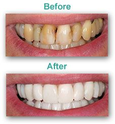 Our porcelain veneers may offer the smile solution for which you've been looking. Veneers are thin, durable sheets of the most advanced dental ceramic available. They are bonded to natural teeth in a way that makes your teeth appear straight and uniform, creating an attractive smile. In no time, your crooked teeth can look like they've had years of straightening. Veneers can also be applied to a tooth to completely conceal a chip or crack or to reshape a worn or misshapen tooth.