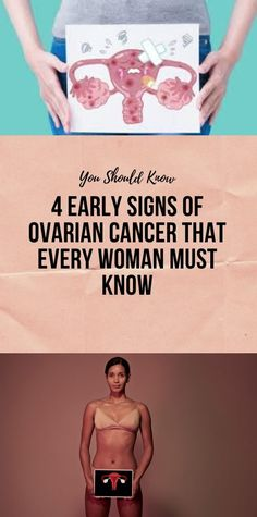 and Fitness quotes 4 Early Signs Of Ovarian Cancer That Every Woman Must Know Signs Of Ovarian Cancer, Ovarian Cancer Symptoms, Healthy Diet Tips, Good Healthy Recipes, Health And Fitness Articles, Health And Nutrition, Health And Beauty Tips, Health Tips, Wellness Fitness