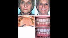 Cấy ghép răng Implant giá bao nhiêu tiền, cấy ghép răng Implant ở đâu tố...