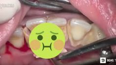 Extreme Dentist Teeth Scale Cleaning Is Terrible AF! (DISTURBING GRAPHICS)