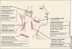 Lymphadenopathy and Malignancy - different lymph nodes in the body and their relations to the body