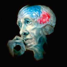 Психосоматика болезни Альцгеймера
