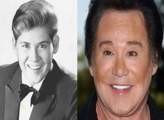 Wayne Newton Plastic Surgery Before and After Facelift, EyeLid and Botox Botched Plastic Surgery, Bad Plastic Surgeries, Celebrity Plastic Surgery, Wayne Newton Plastic Surgery, Plastic Surgery Pictures, Scar Makeup, Lip Fillers, Karen, Liposuction
