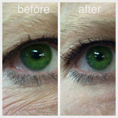 It is called Instantly Ageless and it literally does just that! Skin Peeling On Face, Eye Wrinkle, Moisturizer For Dry Skin, Homemade Moisturizer, Crows Feet, Chemical Peel, Skin Care Remedies, Rhinoplasty, Eyes
