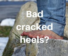Getting rid of bad cracked heels can be easier than what you think. Check out this video.: