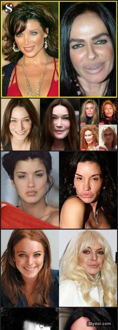 How Horrible Can One Look? Scary Celebrity Plastic Surgery Fails #celebrityfails #plasticsurgery #fails #weird #slydor