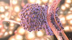 Nova técnica detecta metástases precocemente  As CTC são células que se separam do tumor principal e são transportadas no fluxo sanguíneo. Estas células cancerígenas desempenham um importante papel na disseminação de metástases do cancro. Torna-se assim crucial a detecção das mesmas numa altura inicial de forma a ser possível monitorizar a metastização da doença