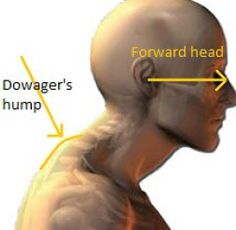 Dowager's hump definition It is anenlarged prominencethat is formed atthe lower region of the neck. … in other words –it's a big bump that sits at the base of your neck!  //Features of a Dowager's hump  As you can see in the picture above, there is: Enlarged prominence(…that's the Dowager's hump!) Forward rounding at the base of the neck Fatty deposit tissue Hyper extension of the middle neck region Loss of natural spinal curve in the neck Forward head posture //T...