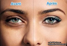 Get rid of under eye bags. Remedies for under eye bags treatment. Prevent under eye bags naturally. Cure under eye bags. Avoid under eye bags fast.