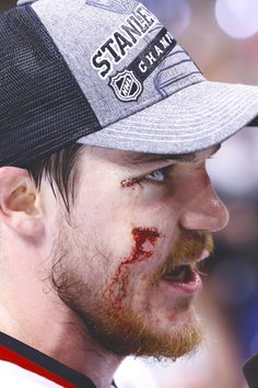 Shaw puck to the face - Hockey is for Tough Guys