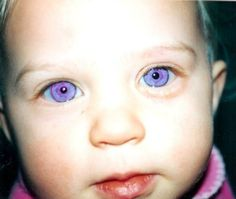 Rare violet eyes (a genetic mutation called Alexandria's Genesis) Whoops! Alexandria's Genesis is a sci-fi thing, not real. These eyes are prob fake. Violet eyes are either seen in incomplete albinism or are trick of the light with deep blue eyes. Beautiful Eyes Color, Stunning Eyes, Pretty Eyes, Cool Eyes, Heterochromia Eyes, Rare Eye Colors, Eye Color Chart, Rare Eyes, Aesthetic Eyes