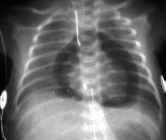 Cardiac tamponade on x-ray.