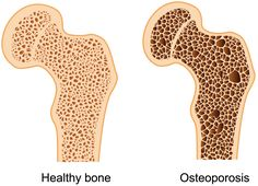Osteoporosis is a common bone disease occurring in about 1 in 5 women. Osteoporosis is categorized in two types. The first category is called primary osteoporosis which occurs as our aging causes an insufficient amount of calcium and phosphate to be sent throughout the body. The other category is called secondary osteoporosis which can occur Read More