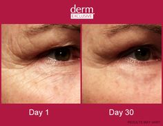 Derm Exclusive before & after Please Check out my website for more Information. Beachbodycoach.com/AmandaIdris