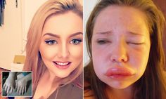 Woman, 20, face swells to DOUBLE in size