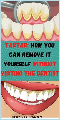 Tartar: How you can remove it yourself without visiting the dentist Best Diet Plan, Healthy Diet Plans, Health Facts, Health Diet, Oral Health, Mental Health, Health Fitness, Natural Antifungal, Best Diet Foods