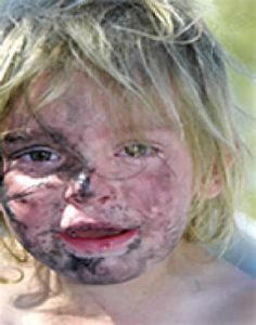 A child rescued during a meth raid.  Meth labs generate hundreds of dangerous chemicals that can combust, corrode the skin, or kill outright.  Police are not allowed inside these places without hazmat gear, but people living in there breathe the stuff in all day long and eat it in their food.